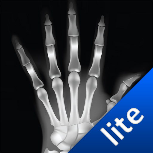 free X-Ray Scan - Lite iphone app