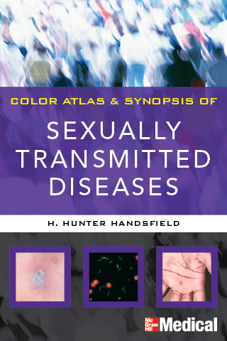 the main features of sexually transmitted diseases Prevalence of sexually transmitted infections among female adolescents aged 14 to 19 in the united states pediatrics, 124 (6), 1505-1512 3 centers for disease control and prevention.