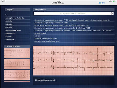 Atlas de ECG Screenshots