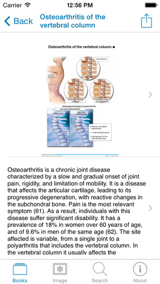 Miniatlas Diseases of the vertebral column iPhone Screenshot 4