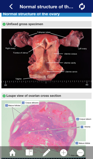 ATLAS OF PATHOLOGY And Comparison With Normal Anatomy Lite