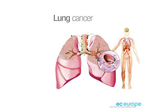 Miniatlas Lung Cancer iPad Screenshot 1
