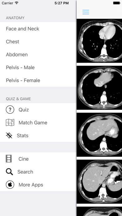 iAnatomy iPhone Screenshot 3