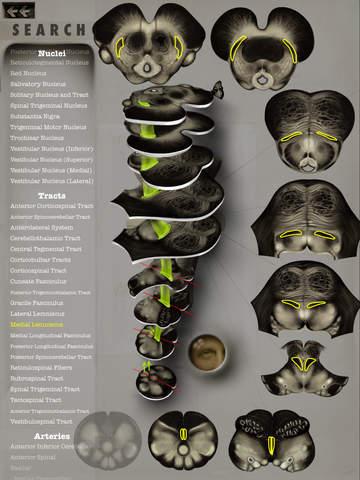 Brainstem101 - Neuroanatomy of the Human Brainstem