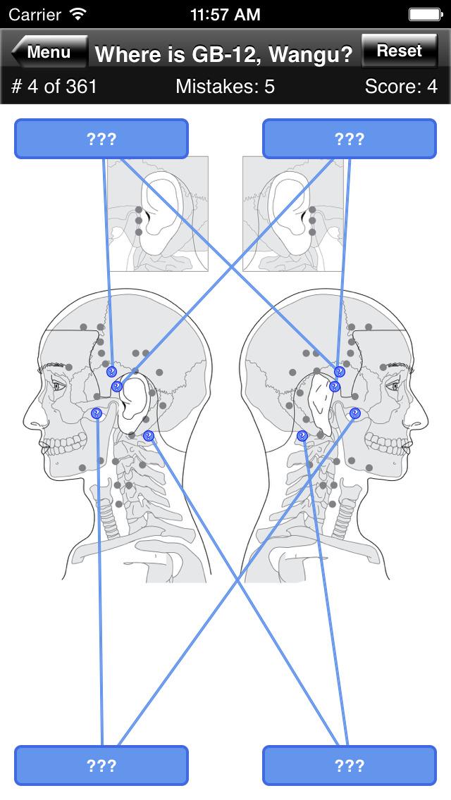 Acupuncture Points Body Quiz screenshot 4