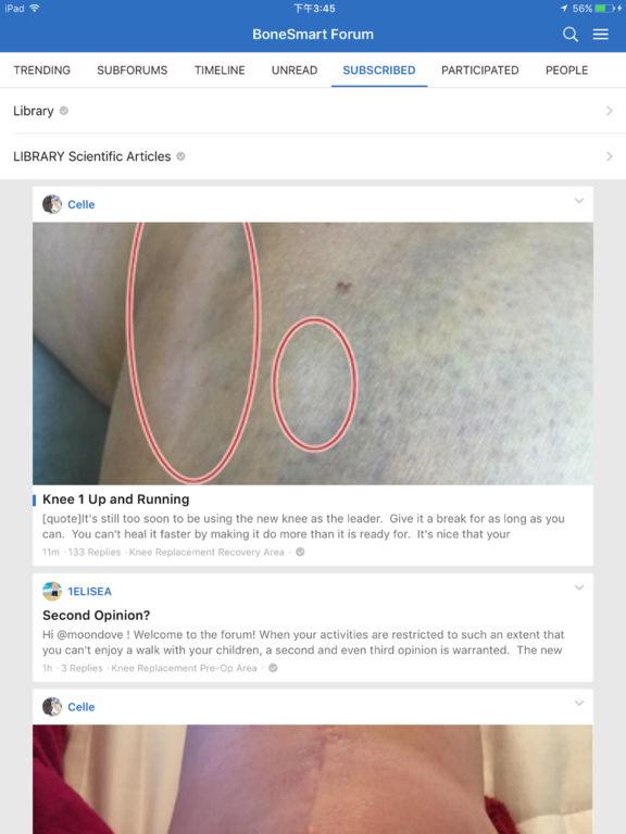 BoneSmart Joint Replacement Patient Forum screenshot 5
